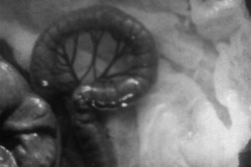 play video for Intestinal peristalsis