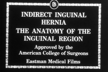 play video for Indirect inguinal hernia: anatomical aspects