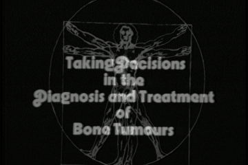 play video for Disorders of the skeletal system: taking decisions in the treatment and diagnosis of bone tumours
