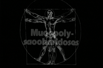 play video for Disorders of the skeletal system: Mucopolysaccharidoses Part 2